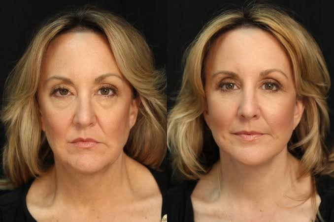 Get Natural-Looking Outcomes With Facelift Miami