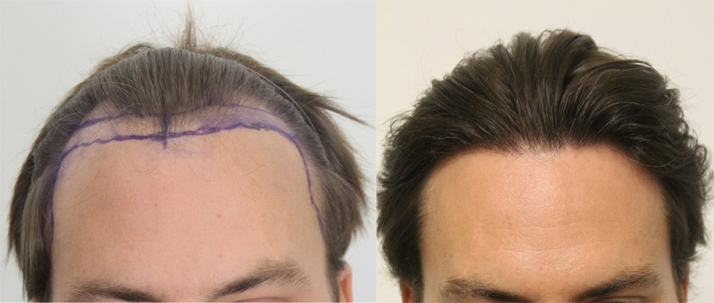 Why should one look for Hair Transplant in India?