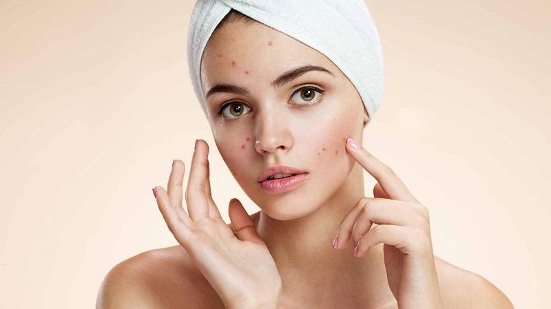 Natural Facials vs Acne