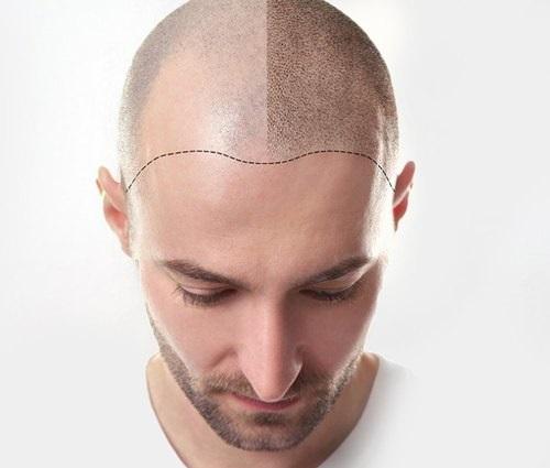 Drawbacks of Cheap Hair Transplantation