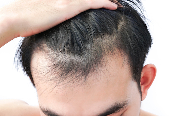 PRP THERAPY: HOW TO REGROW HAIR WITHOUT HAIR TRANSPLANT