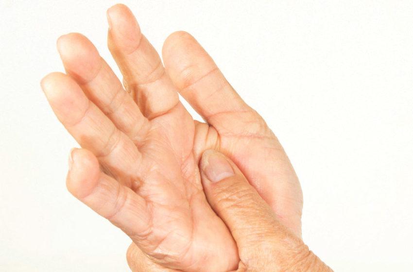 Lupus And Rheumatoid Arthritis Can Be Treated
