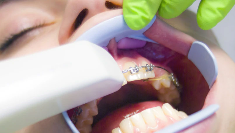Aesthetic Orthodontic Brackets For Fixing Spacing Issues