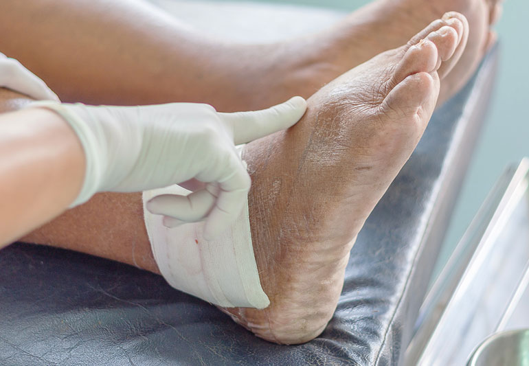 What is gout and the Causes of gout?